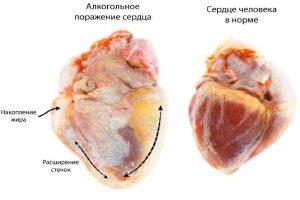 Алкогольное поражение сердца
