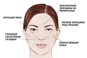 Влияние алкоголя на кожу лица