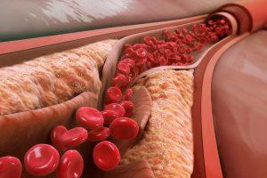 Атеросклеротические отложения